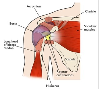 Shoulder impinge