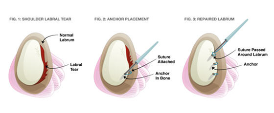 Attached Image: Labral_surgery.png